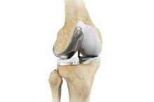 Uni condylar Knee Replacement